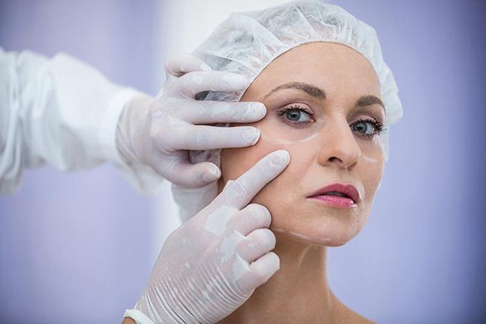 tratamiento relleno facial marbella