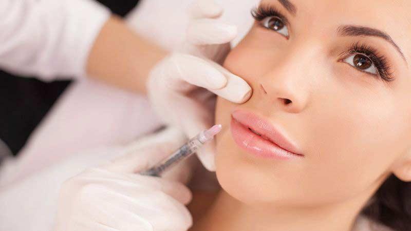 Tratamiento estético de labios en Marbella