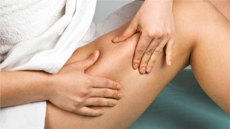 tratamientos de subsicion celulitis Marbella